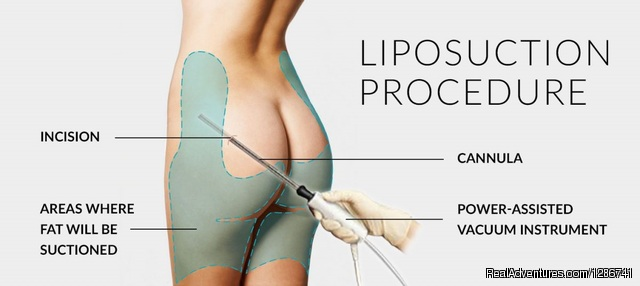 How Can Resolve my Liposuction Problems